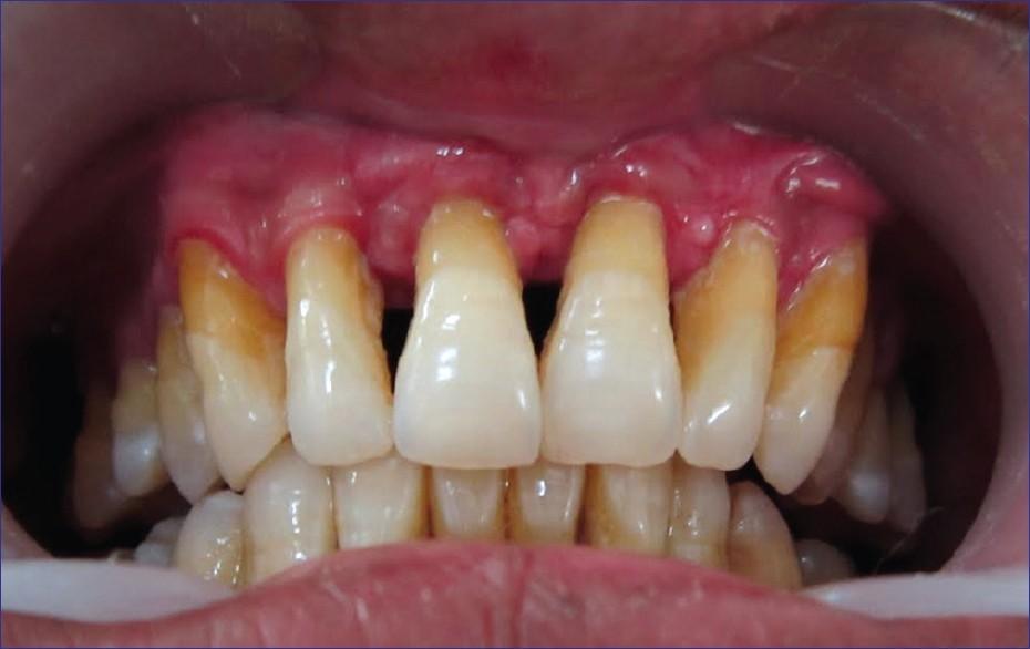 مشکلات شایع دهان و دندان در سالمندان بهداشت پریودنتال
