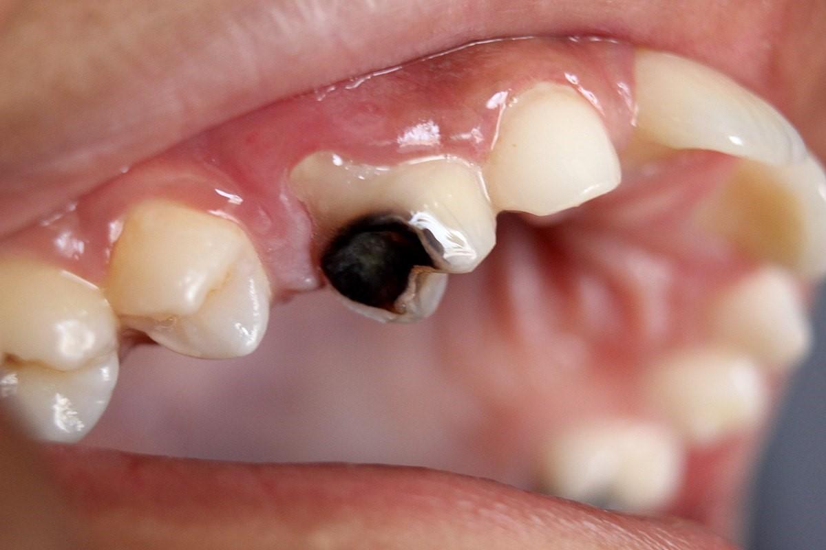 مشکلات شایع دهان و دندان در سالمندان ظاهر و ساختار