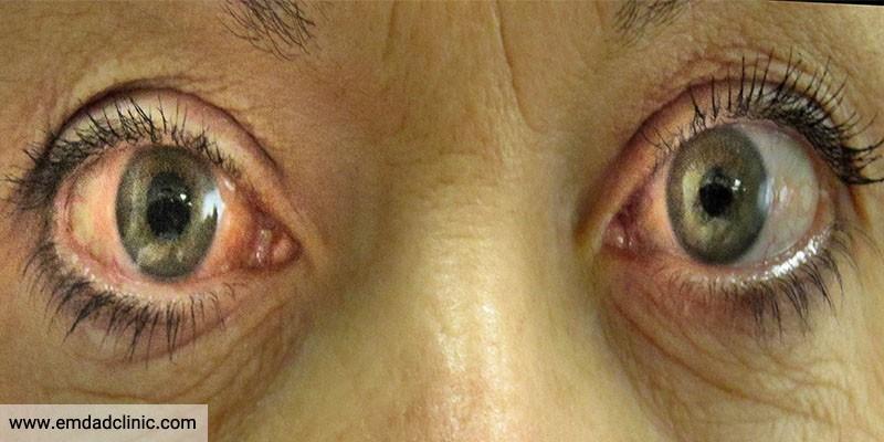 بیماری های شایع چشم در سالمندان