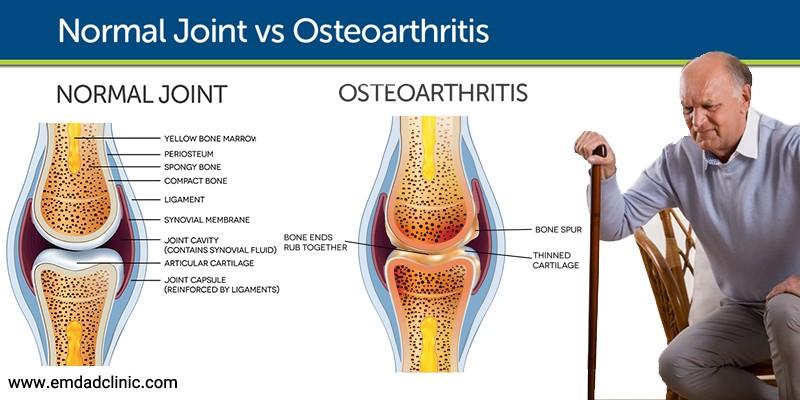 بیماری آرتروز یا استئوآرتریت درسالمندان و علائم آن
