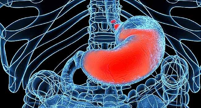 عوامل موثر در ایجاد رفلاکس اسید و سوزش سر دل (معده)