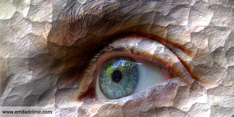 آیا روزه داری می تواند عامل بروز سندرم خشکی چشم باشد؟