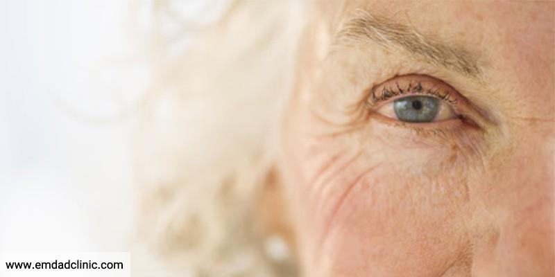 سندرم خشکی چشم در سالمندان