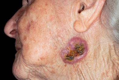 بدخیمی پوستی در سالمندان