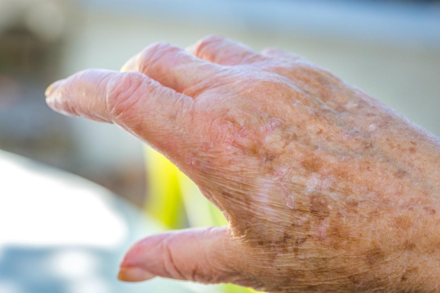 بیماری پوستی در سالمندان